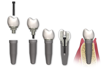 اتصال با پیچ در ایمپلنت دندان